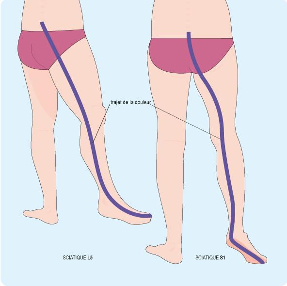 Schéma représentant le trajet de la douleur en cas de sciatique L5 ou S1, le long de la jambe (cf. description détaillée ci-après)