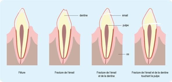 Schéma : différents traumatismes dentaires