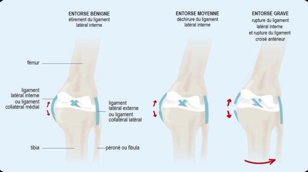 Schéma : différents types d'entorses du genou