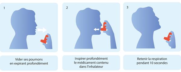 Schéma en 3 étapes décrivant la bonne utilisation d'un inhalateur, permettant notamment de retenir la respiration pendant 10 secondes (cf. description détaillée ci-après)