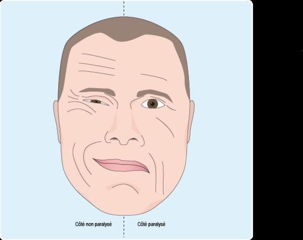 Schéma : visage présentant une paralysie faciale