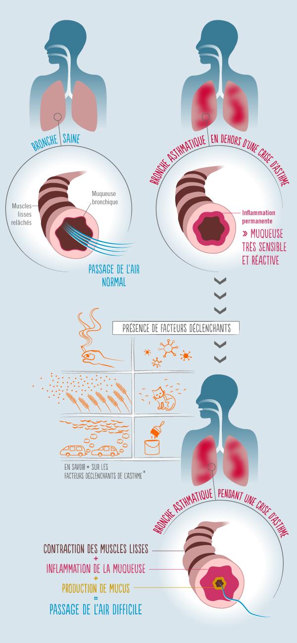 Infographie représentant les mécanismes de l'asthme, les facteurs déclenchants de la maladie, et les symptômes d'une crise d'asthme (cf. description détaillée ci-après)